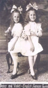 Siamese_Twins_in_History_19